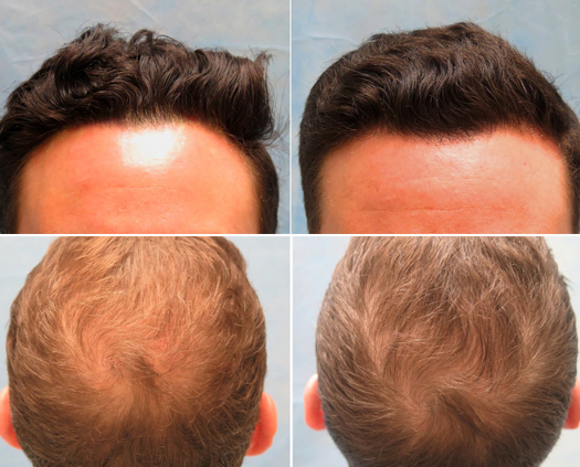 Prp Hair Loss Therapy Treatment In Mexico 300