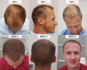 FUE Hair Transplan
