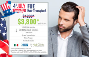 Fue Hair Transplant july 4th 2019 discount price