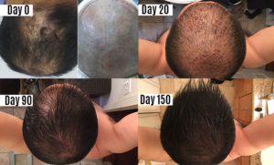Hair Transplant in Mexico, Tijuana - FUE | BBB Certified